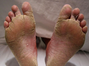 Image of Athletes foot