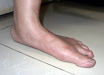 Image of flat foot